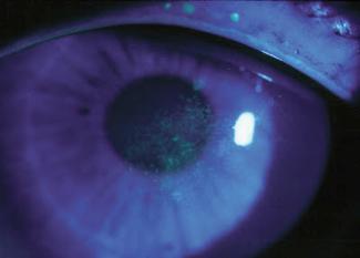 Trockenes Auge Gero Mayer